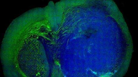 英国发现激光手术可观测所有脑部肿瘤边界