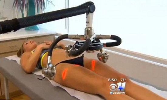美国一名女子花近千美元为美腿做激光减脂