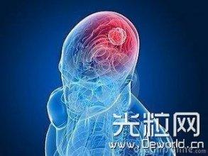 激光可突破血脑屏障治疗脑瘤