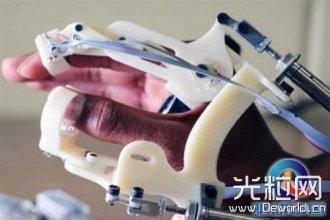 美科学家造出3D打印触觉敏感手套可用于脑瘫早期