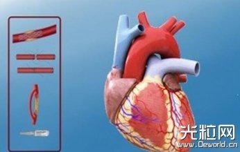 荷兰大学生开发3D打印+VR工具 帮助心脏病患者理