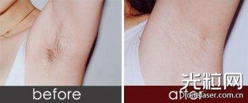 哪些人不适合做激光脱毛 激光脱毛会有哪些副作