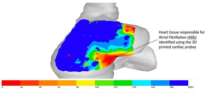 斯坦福大学的研究人员使用3D打印创建更好的心脏导管设备