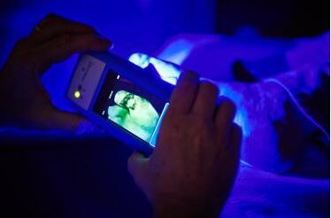 手持式荧光成像仪获得美国FDA De Novo许可