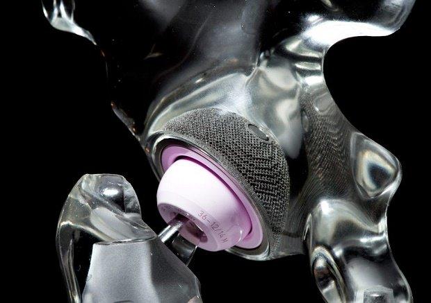 加拿大卫生部发布医疗设备3D打印的新指南